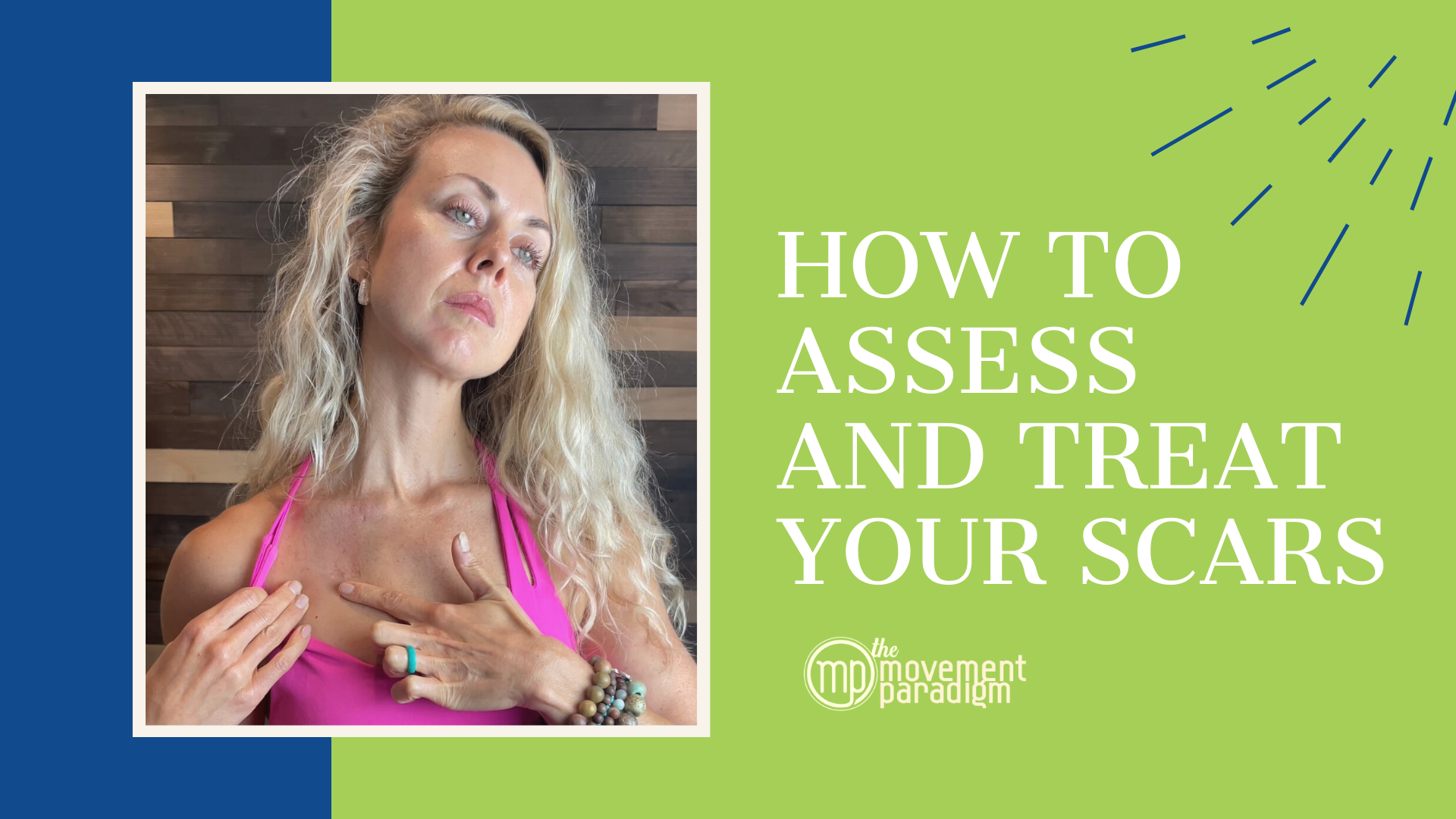 How To Assess and Treat Your Scars